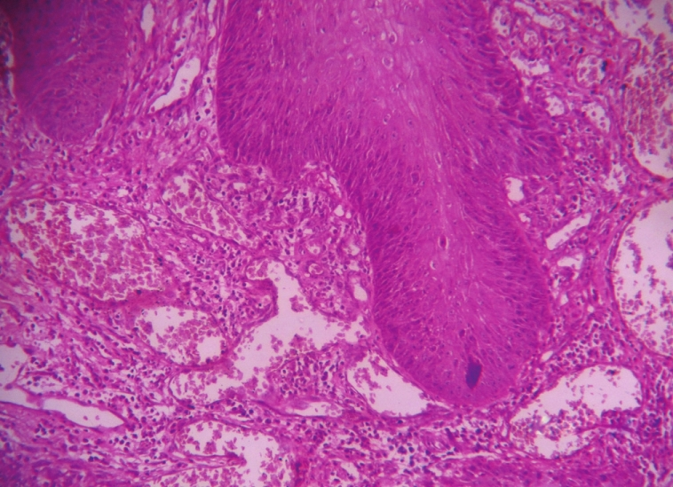 Figure 6: Papillomatosis and hyperkeratosis of well differentiated squamous epithelium with keratin plunging (x 10 magnification - Hematoxylin and Eosin staining)